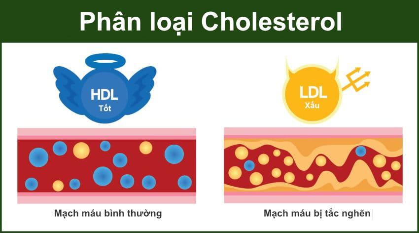 phan loai cholesterol